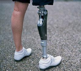 protesis modular