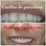 Porseleinen veneers