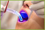 Laser behandeling