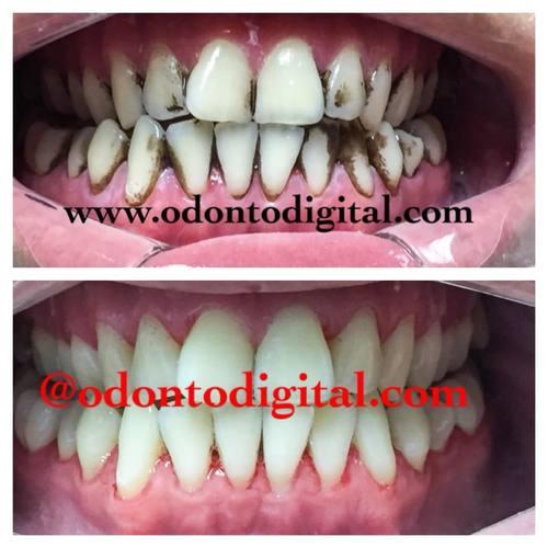FORNECIMENTO DE LIMPEZA PROFUNDA clínica dentária em MIRAFLORES