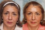 Botox Aplicação em Miraflores Lima