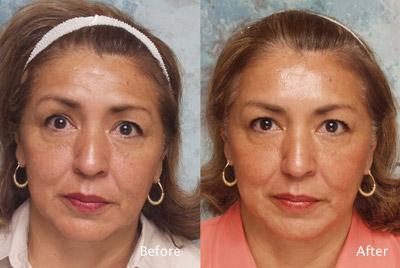 Botox Anwendung in Miraflores Lima