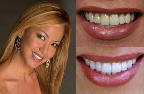 TEETH WHITENING PACKAGE FOR BRIDES