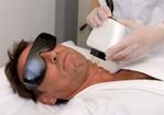 Depilacion definitiva IPL - Rejuvenecimiento facial
