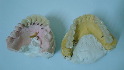 Ajustes oclusais em articulador semi-ajustável de cerâmica Coroas