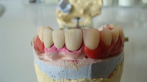 Anhang herausnehmbarem Zahnersatz lassen Metallkeramikkrone