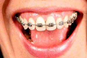 Ortodontia Fixa