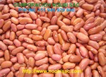 Red Kidney Bean Phaseolus vulgaris