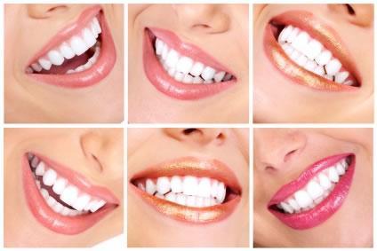 diseno de sonrisa
