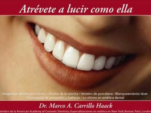 Diseño de Sonrisas Blanqueamiento dental