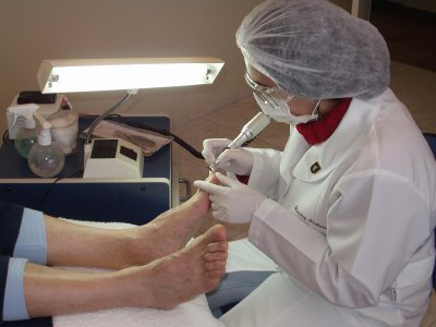 Tratamientos de Podologia
