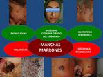 Manchas y Lunares / Dermatologo