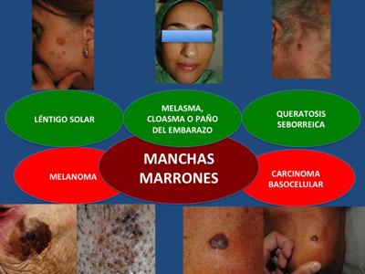 Keratosis Warts Moles /