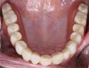 Dentadura superior completa (Sin paladar)