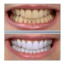 Todo en blanqueamiento dental