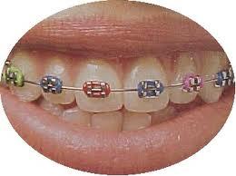 Todo en ortodoncia