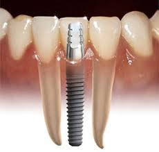 Todo en implantes dentales