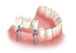 Todo en Protesis Dentales