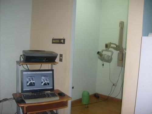 X RAYS intraorale Kamera, digitales Röntgen
