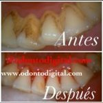 Deep Dental Cleaning Speciale aanbieding in Miraflores