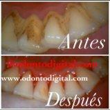 Profundamente Dental Limpeza Oferta especial em Miraflores