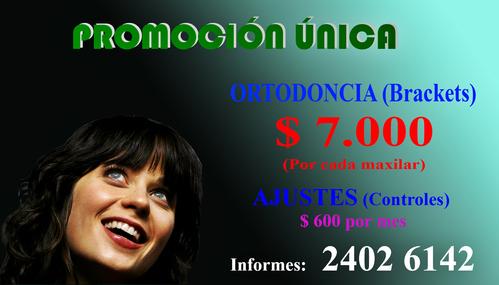 Brackets!! El Precio Más Bajo En Montevideo.