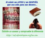 Ortodoncia con los mejores precios y financiación