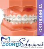 Ortodoncia para toda la familia