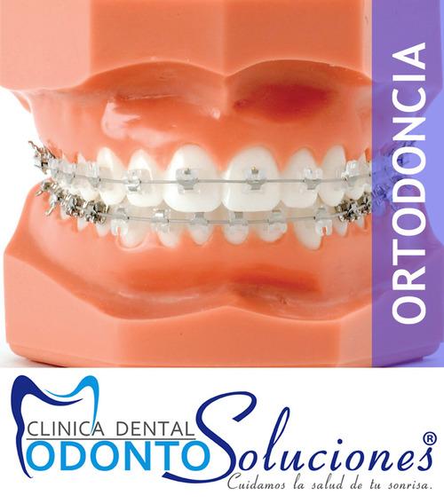 Ortodontia para toda a família