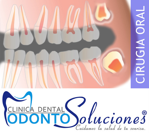 Cirurgia do dente do siso / Os terceiros molares