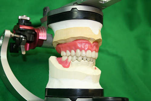 Fixed and Removable Prosthesis