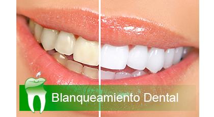Blanquemientos Dentales