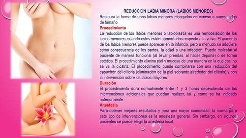 REDUCCION LABIA MINORA