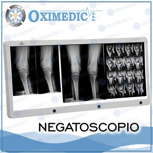 Negatoscopio