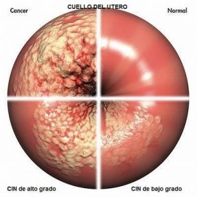 Cervix uterino