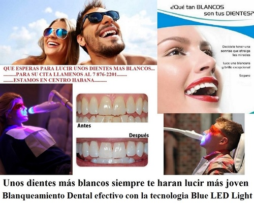 * Dental Whitening with Blue LED Light Technology *