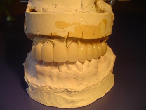 Puente porcelana en modelo