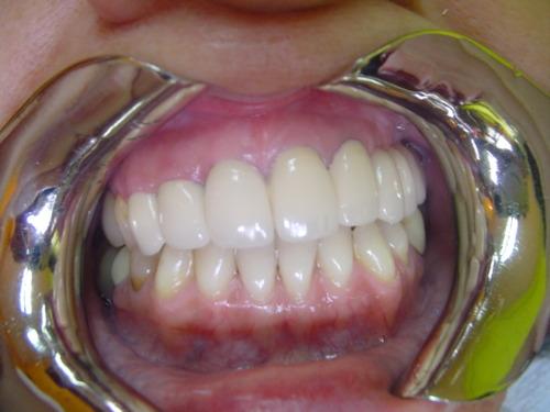 Puente porcelana en boca