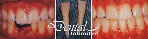 Reïmplantatie van natuurlijke tanden