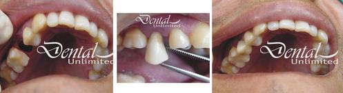 transplantation of natural teeth