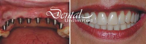 Dentadura sobre implantes (4 implantes)