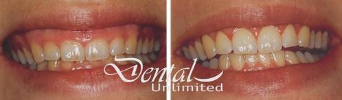 Cirugía de sonrisa gingival leve