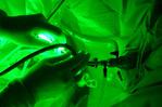 Laser Greenlight para a próstata